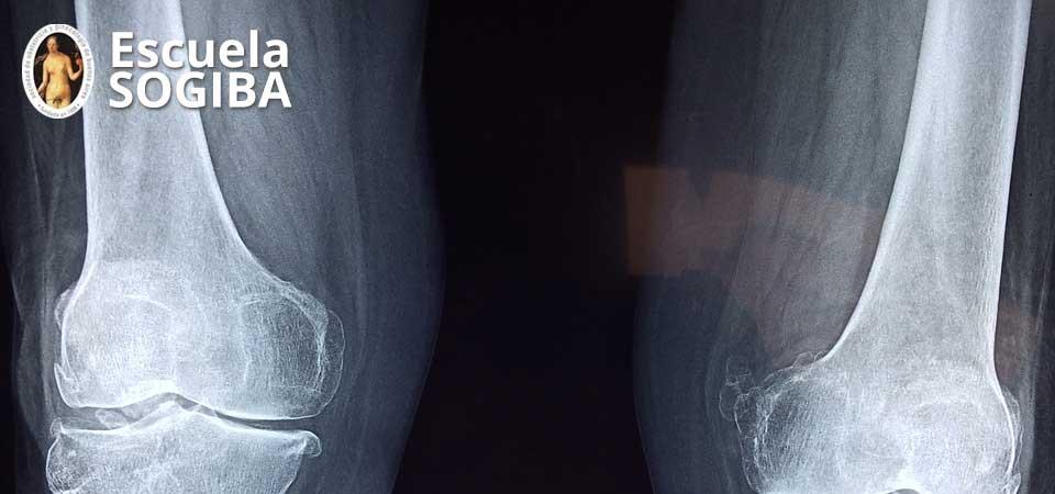 Osteoporosis: ¿qué debe conocer el tocoginecólogo en su práctica habitual?
